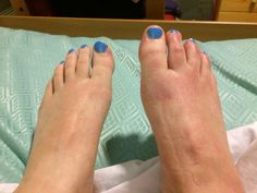 Cauda Equina Syndrome neurogenic right foot Cauda Equina Syndrome, Spine Health, Feet Care, Massage, Advice, Tips, Massage Therapy, Foot Care