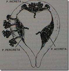 viagra varicocele