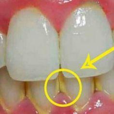 Hoe tandplak te verwijderen in 5 minuten op natuurlijke wijze, zonder naar de tandarts te gaan!