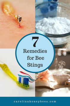 Bee stings are no fun. But almost everyone gets stung at some time.  If it happens to you, try these home remedies for bee stings. via @https://www.pinterest.com/carolinahoneyb