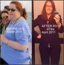 HCG Diet Before and After