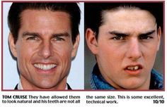 """It looks like Tom Cruise has had some dental work done.  Most likely, the """"Mission Impossible"""" star has some pearly white veneers."""