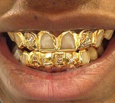 Top to cover broken side front Mouth Grillz, Gangsta Grillz, Gold Slugs, Diamond Grillz, Gold Grill, Grills Teeth, Gold Teeth, Matte Lips, Gold
