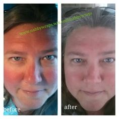 #sunburn #facial To much sun and I forgot sunscreen on my face.  I did one 45 facial wrap.  And the redness deceased, scaly dryness gone, and forehead wrinkles diminished.  WIN CALL/text 607-237-3371 for your personal It Works! Plan