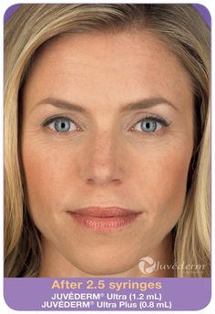 The results of injecting Juvederm are immediate. We use it mostly for the deep lines around the mouth, called nasolabial folds. Check out the before and after photos of Rebecca. Call 601.790.9427