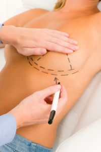 Prices for breast augmentation in dallas tx