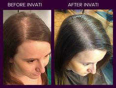 Aveda Invati before and after. This is a naturally derived 3-product system to help reduce hair loss by 33%.