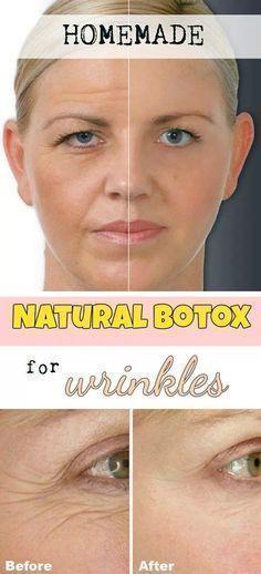 Homemade Natural Botox For Wrinkles