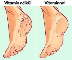 Natural Oils, Natural Skin, Listerine Foot Soak, Bath Body Works, Shower Routine, Vinegar And Water, Cracked Skin, Heel Pain, Natural Remedies