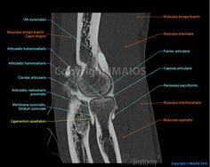 Shoulder MRI | Anatomie des Ellenbogens (CT-Arthrographie): Atlas des menschlichen ...