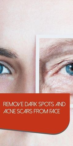 How to get Rid Of Brown Spots on Face #DarkBrownSpotsOnFace #NaturalWayToGetRidOfBrownSpotsOnFace #SkinBrownSpotsOnFace #FaceMolesBrownSpots Sun Spots On Skin, Black Spots On Face, Brown Spots On Hands, Spots On Legs, Dark Spots, Creme Anti Rides, Creme Anti Age, Sunspots On Face, Face Moles