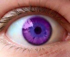 《1万人にひとり!》パープルズ・アイ(紫の眼)を持って生まれた少年の瞳が美しい