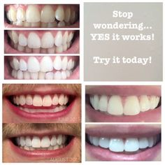 Teeth Whitening Whitening paste ✔️ Sugar free ✔️Peroxide free ✔️Stain removing Perfect for red wine enthusiasts, tea and coffee drinkers Whitening Fluoride Toothpaste, Whitening Kit, Skin Whitening, White Teeth, Diy Skin Care, Best Face Products, Skin Products, Beauty Products, Beauty Secrets