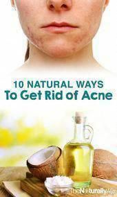 How to get Rid Of Brown Spots on Face - Acne Treatment Sun Spots On Skin, Brown Spots On Hands, Age Spots On Face, Spots On Legs, Dark Spots, Home Treatment, How To Get Rid Of Acne, How To Remove