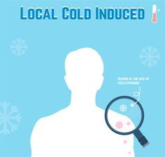 Great breakdown on Cold Urticaria including some of the drugs used to help supress it and some tests I'm not sure I've had. Cold Urticaria, Autoimmune Disease, Asthma, Pcos, Blog Entry, Allergies, Drugs, Medical, Thoughts