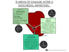 3 Areas of Damage After A Myocardial Infarction | Nursing Mnemonics and Tips
