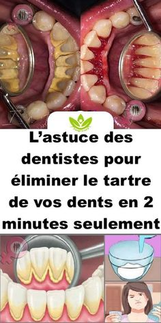 L'astuce des dentistes pour éliminer le tartre de vos dents en 2 minutes seul… - オーラルケアに関するすべて - Everything About Oral Care Dental Health, Dental Care, Oral Health, Health Tips, Health Care, Emergency Dentist, Coconut Health Benefits, Healthy Teeth, Healthy Life