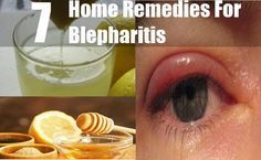 Blepharitis is a condition of the eye, an ocular disease which causes inflammation and redness in the eyes due to infection in the eye lids. This infection can be anterior, on the top of the eye lids which we can see or posterior, in the portion of the eyelid that comes in contact with the eyes directly. Reasons for one to develop this peculiar condition can be dandruff in the eyelashes and eyebrows (Seborrheic dermatitis), bacterial infection, improper functioning of the oil glands present…