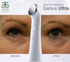 Améliorer l'apparence de votre peau du contour des yeux!  Efficacement et rapidement avec l'appareil Ultrason Génius Ultra! http://monalisatremblay.arbonne.com/