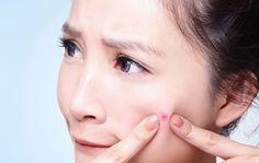 मुंहासो से छुटकारा दिलाएंगे ये नुस्खे  Read More-->> http://www.oneworldnews.com/hindi/how-get-rid-pimples/