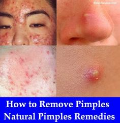 How to Remove Pimples – Natural Pimples Remedies