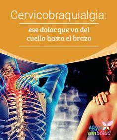 Cervicobraquialgia: ese dolor que va del cuello hasta el brazo  Puede que el nombre nos inquiete un poco, pero la cervicobraquialgia es más común de lo que pensamos.