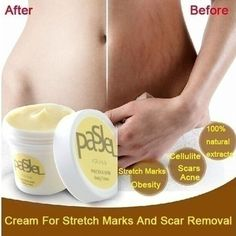 Cream For Stretch Marks And Scar Removal Powerful To Stretch Marks Maternity Skin Body Repair Cream Remove Scar Care Postpartum - Cerkos - 1 Stretch Mark Treatment, Stretch Mark Removal, Scar Treatment, Acne Treatments, Skin Care Regimen, Skin Care Tips, Skin Tips, Skin Whitening, Body Creams
