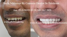 smile makeover by Cosmetic Dentist Dr Trivikram(Dr Vikram) you can get a transfo… – Cosme… smile makeover by Cosmetic Dentist Dr Trivikram(Dr Vikram) you can get a transfo… – Cosmetic Dentistry Cost Bangalore. Smile Dental, Smile Teeth, Cosmetic Dentistry Cost, Composite Veneers, Crooked Teeth, Smile Makeover, Teeth Braces, Dentist In