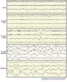 Brain wave activity during wakefulness and sleep EEG (electroencephalogram) Sleep Lab, Rem Sleep, Sleep Inertia, Sleep Center, Stages Of Sleep, Sleep Therapy, Sleep Medicine, Brain Anatomy, Sleep Studies