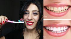 1 Haftada 3 Ton Diş Beyazlatma Yöntemleri