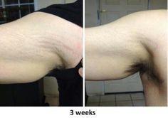 neriumad | NeriumAD - Age Defying Treatment /  www.youthsecrets.nerium.com