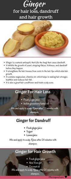 How to use ginger for hair loss, dandruff and hair growth.