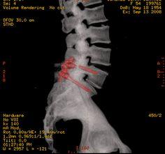 Las Mejores 10 Ideas De Cirugía De Columna Cirugía De Columna Lumbares Columnas