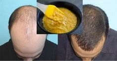 Extremely Effective Homemade Mask for Hair Growth! - Healthy Tips World Healthy Tips, Healthy Hair, Healthy Food, How To Grow Your Hair Faster, Hair Mask For Growth, Bald Hair, Homemade Mask, Hair Remedies, Silky Hair