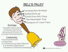 Bell's palsy ,,,,