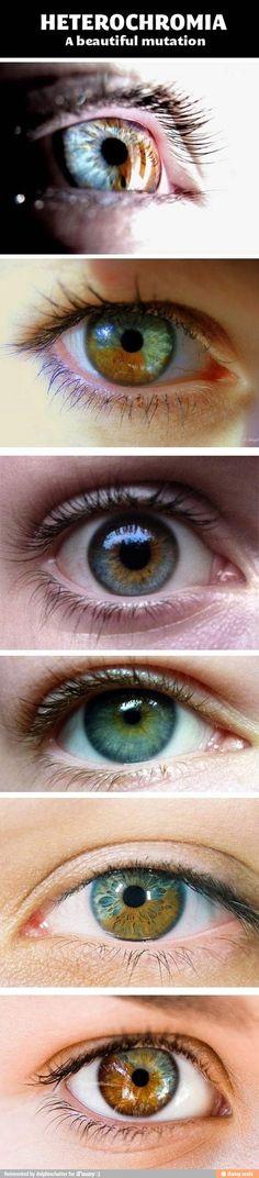 Heterochromia: A Beautiful Mutation via iFunny :)