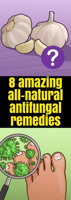 Here 8 Amazing all-Natural Antifungal Remedies!!! - Way to Steal Healthy