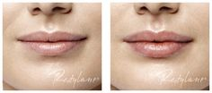 Before and After using Restylane® Silk Treatment 17 Pretty Makeup Looks to Try in Restylane Lips, Botox Results, Botox Forehead, Botox Brow Lift, Best Lip Gloss, Perfect Lips, Lip Fillers, Lip Care, Skin Care