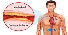 Trápi vás súčasne vysoký krvný tlak, cholesterol alebo častá únava? Namiesto užívania liekov či zložitých diét, skúste začať jesť túto potravinu.