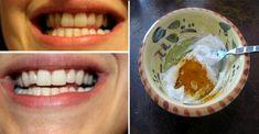 Zähne aufhellen zuhause: mit nur 2 Zutaten zum strahlenden Lächeln