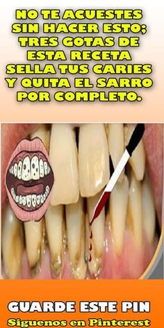 Dental Activities for Kids - Todo Sobre La Salud Bucal 2020 Doterra, Dark Spots On Skin, Skin Spots, Oral Health, Health And Wellness, Loose Tooth, Receding Gums, Healthy Teeth, Oral Hygiene