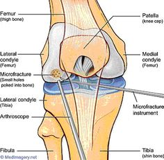 Microfracture Knee Surgery - I had both a medial & lateral femoral condyle  microfracture done in my right knee