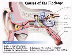 Conductive hearing loss examples