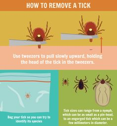 Identifying ticks is the first step in preventing a tick bite. Learn which ticks are in your regional area, then perform regular tick checks to keep them at bay. Survival Tips, Survival Skills, Wood Tick, Tick Removal, Tick Bite, Summer Safety, Body Is A Temple, Lyme Disease, Pest Control
