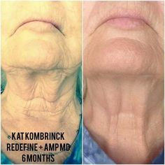 Order Rodan+Fields Redefine AMP It Up Special and get a FREE box of our Acute Care (wrinkle patches)! That is $643 worth of product for $297!! Now through September 30th or while supplies last.  Plus a free special gift from me.  Email me for more details joanneflorian@hotmail.com