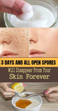 Pores are small openings. Since we get older they have been almost difficult to be seen with the naked eye, but may grow in size. Enlarged pores will ruin your look, which is why everybody would like to resolve the issue and look very disagreeable . Natural Toner, Natural Foods, Natural Skin, Natural Facial, Natural Beauty, Skin Toner, Healthy Brain, Skin Problems, Skin Treatments