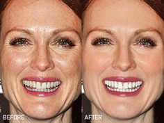 The gorgeous Julianne Moore without and with Photoshop. Why must they always hide the freckles?!