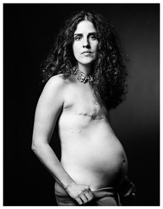 The SCAR Project is a series of large-scale portraits of young breast cancer survivors shot by fashion photographer David Jay. http://www.thescarproject.org