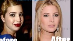 Doctor speculates  about  Ivanka  Trump's Face  changing plastic  surgery