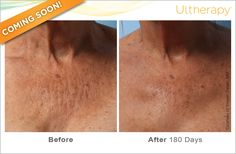#Ultherapy is now FDA-cleared to improve lines and wrinkles on the #décolletage!